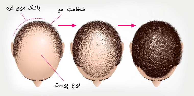روش های درمان ریزش مو - کاشت مو